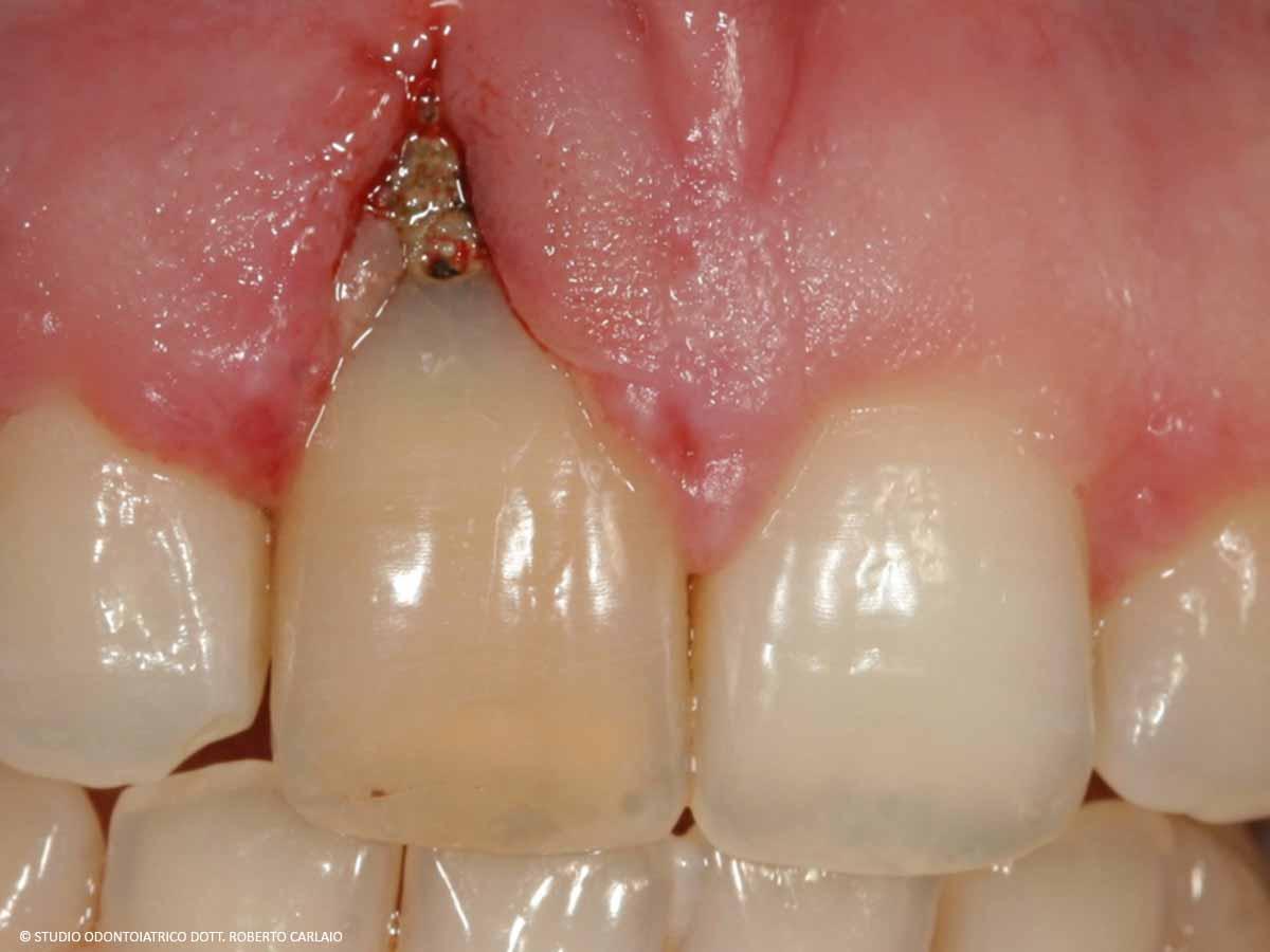 Infezione della radice del dente