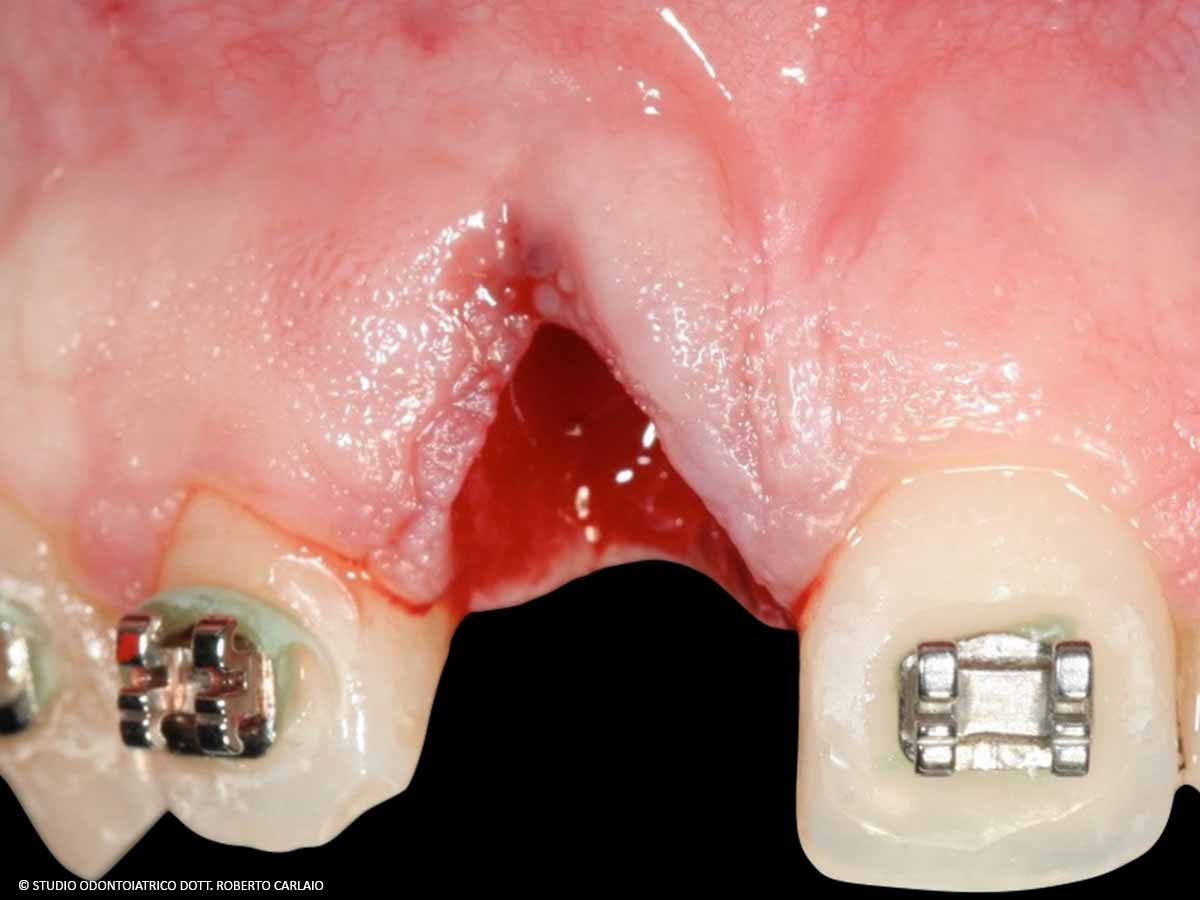 Avulsione del dente