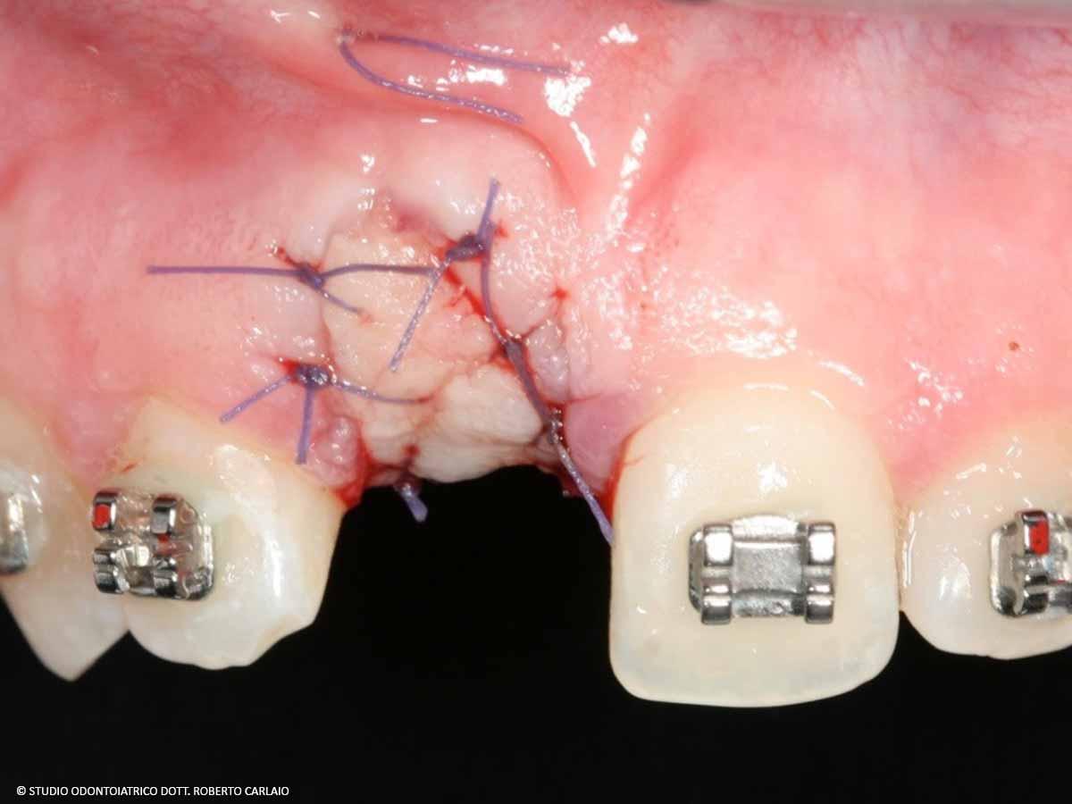 Innesto dell'osso vestibolare e sutura