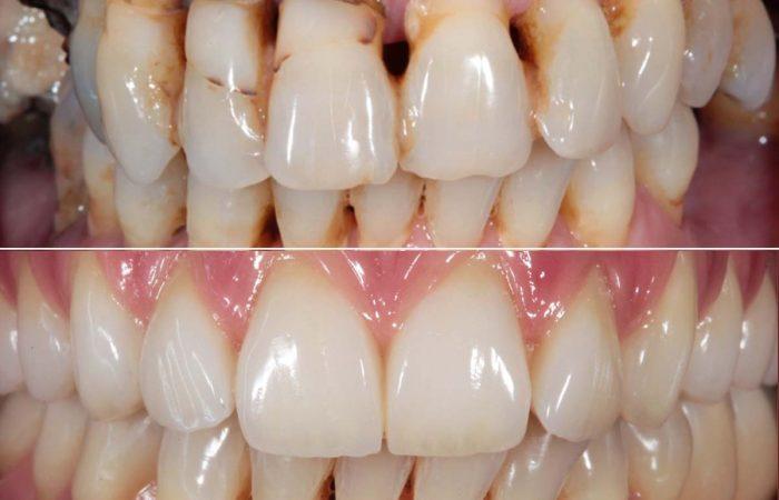 Caso di impianto dentale completo