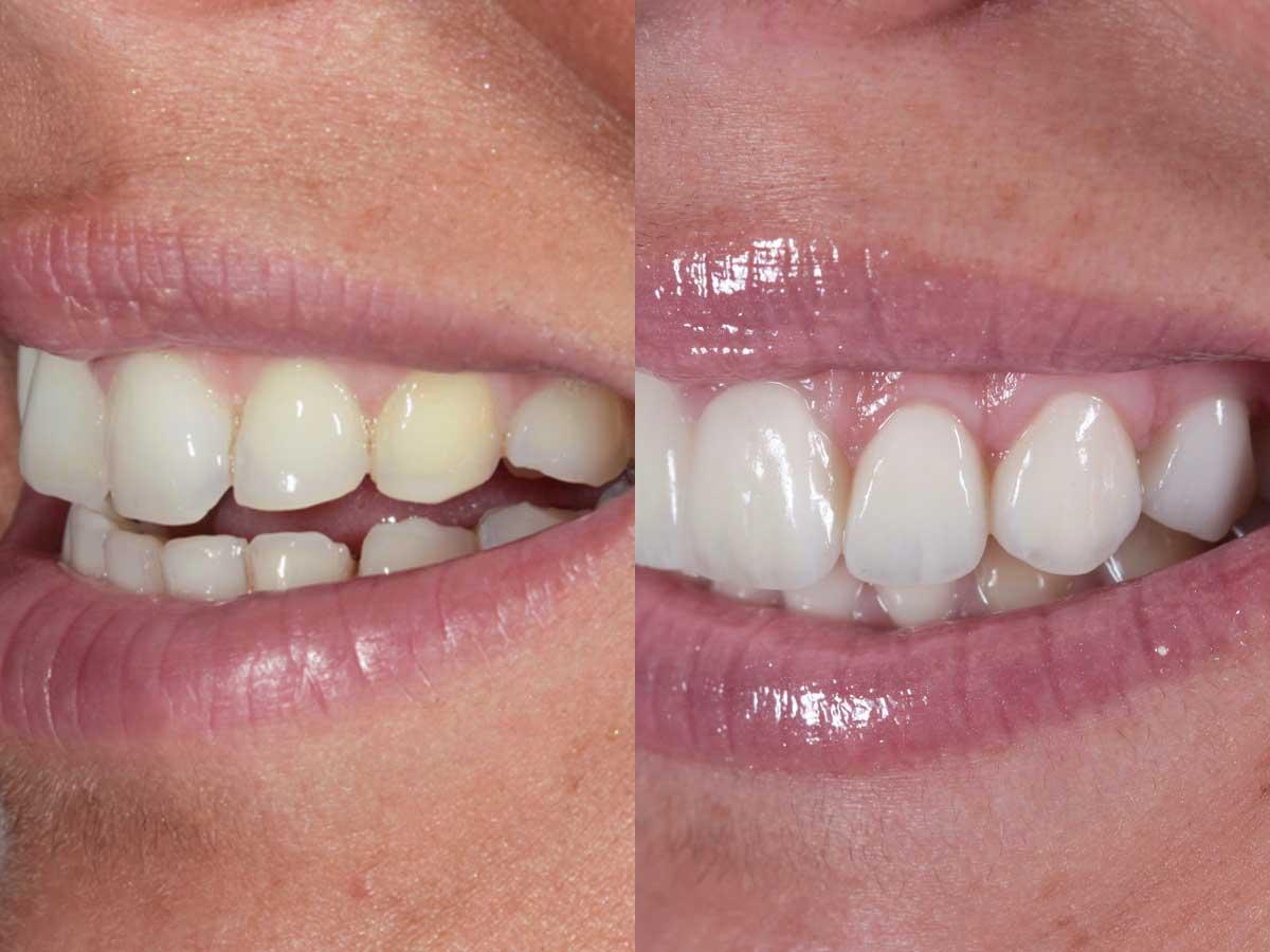 Caso di faccette dentali