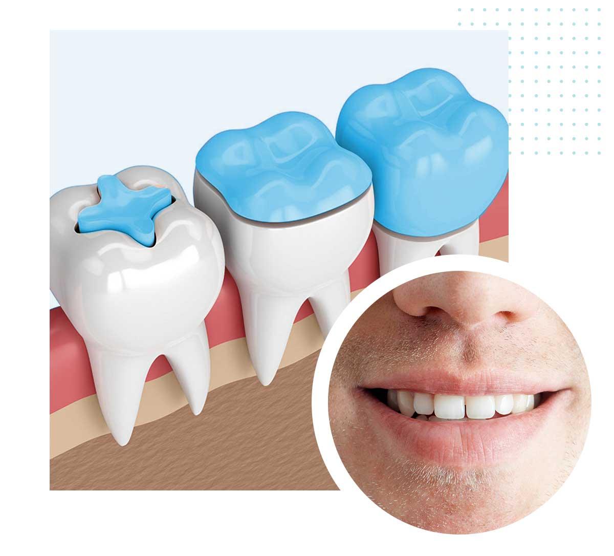 Otturazione dentale e intarsio