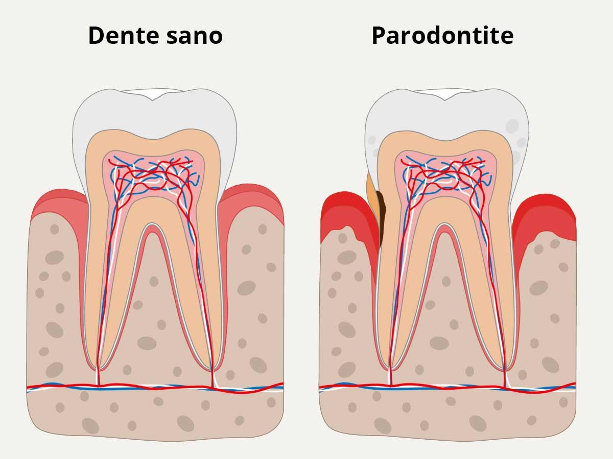 Parodontite Bari