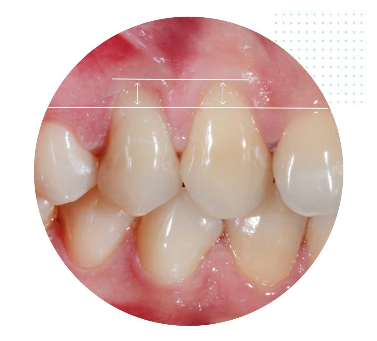 Parodontologia Bari