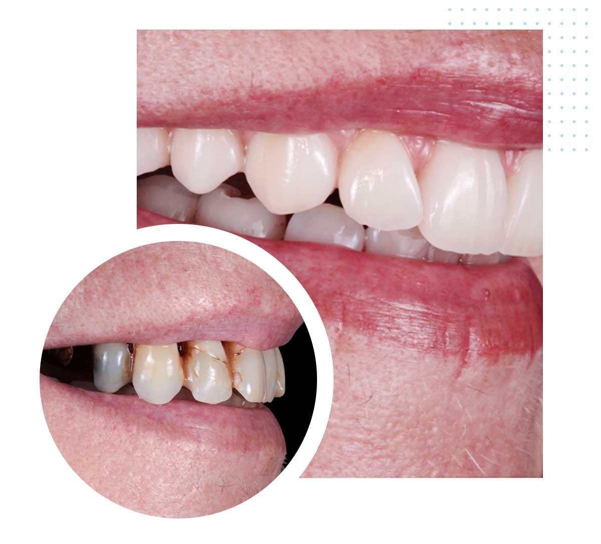 Prima e dopo impianto dentale