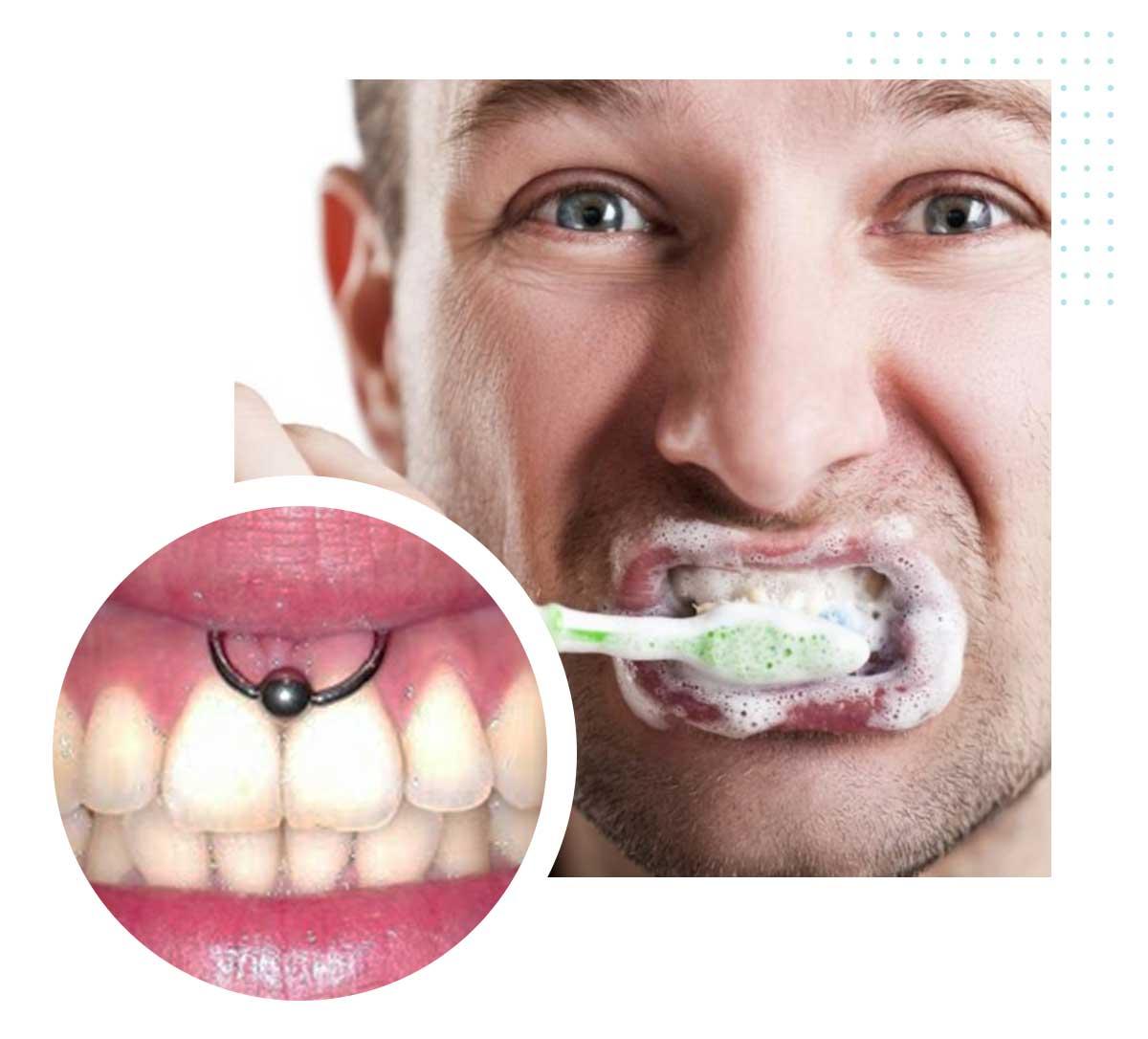 Errato spazzolamento dei denti