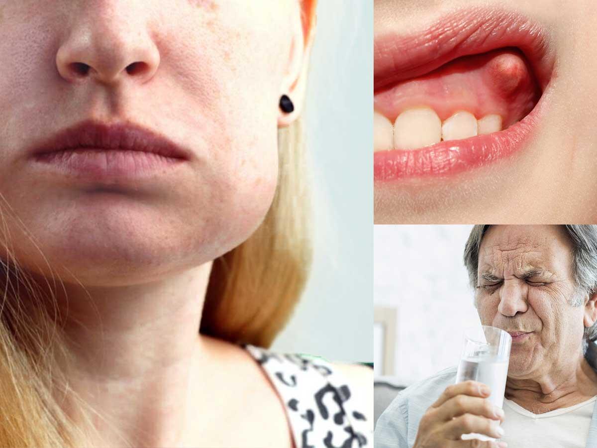 Infiammazione della polpa
