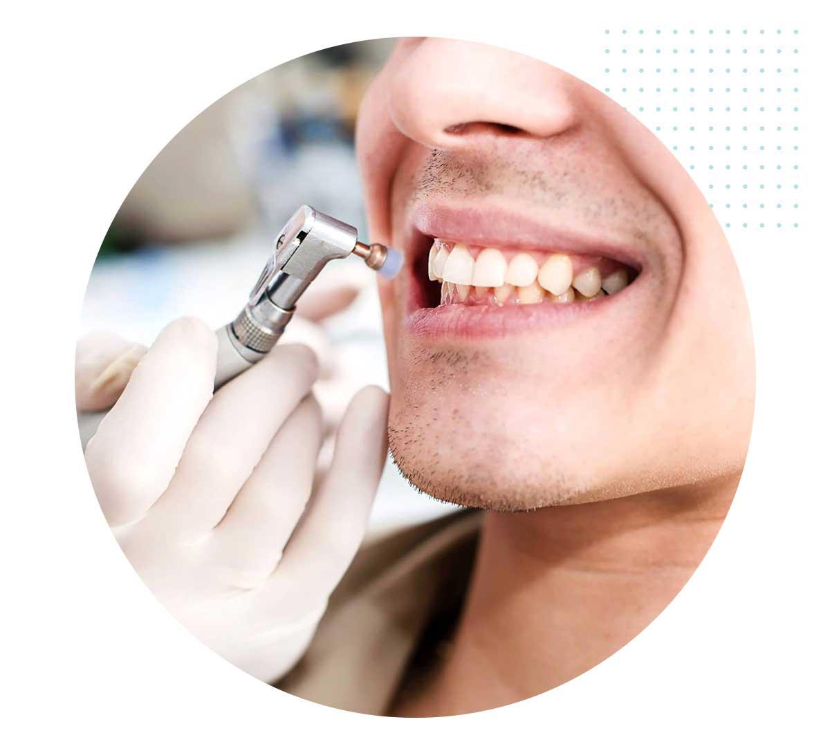 Igiene dentale Bari
