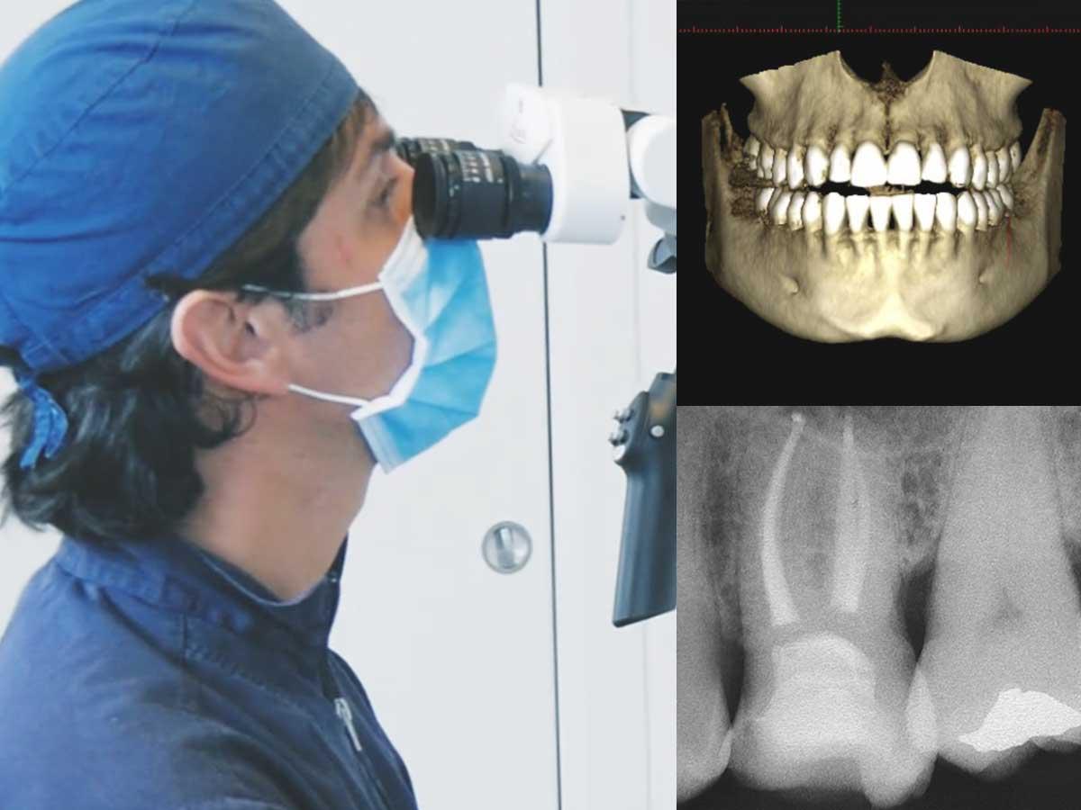 Chirurgia orale Bari