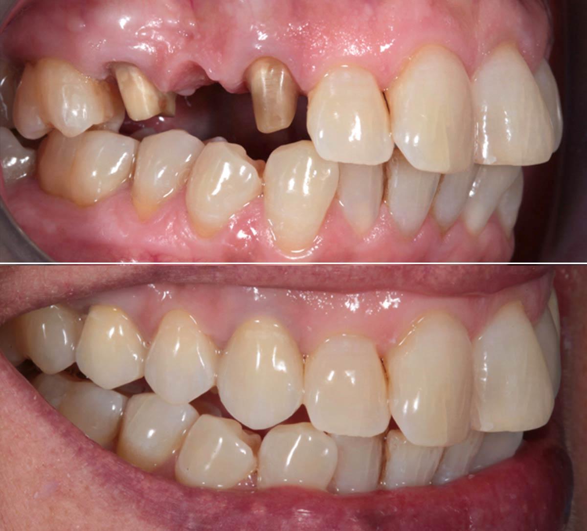 Protesi dentale fissa Bari