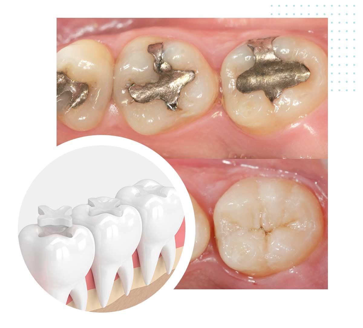 Otturazioni dentali estetiche